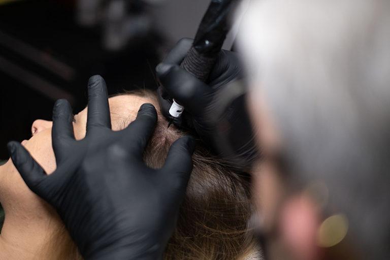 Scalp Micropigmentation – Volles Haar ohne Operation